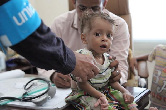 Yemen, foto di un bambino denutrito