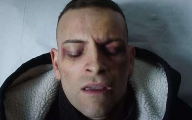 una foto del volto tumefatto di Stefano Cucchi/Alessandro Borghi